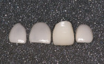 Figure 4  Restorations returned from the laboratory. Note the difference in the appearance of the porcelain of the crown and the veneers due to porcelain thickness.