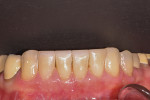 (5.) Lower anteriors after transitional composite bonding.