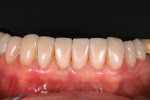 (7.) Placement of the final porcelain restorations, Nos. 20 through 29.