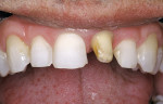 Figure 5  Etched enamel is frosty while the etched dentin is left slightly moist (glossy appearance) on tooth No. 9 crown preparation.