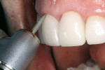 Figure 10  A flame-shaped diamond removes any excess porcelain and resin cement at the gingival margin.
