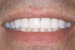 Figure 13  Completed restorations accomplish the smile the patient desires.