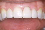 Figure 14  Completed restorations accomplish the smile the patient desires.