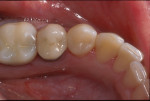 Figure 9. The final esthetic restorative outcome demonstrates imperceptible blending with the natural tooth structure.
