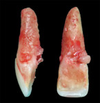 Fig 6. The removed tooth showed the internal resorption lesion had perforated the palatal aspect of the root.