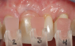 Fig 6. Gingiva shade was taken with custom-fabricated pink porcelain tabs.
