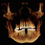 Fig 5. CBCT rendition of maxilla and mandible indicating extent of bone resorption.