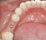 Figure 23  The implant 6 weeks post-placement, note bulk-out of the previously resorbed ridge.