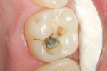 Figure 2  Amalgam was removed and the cavity was prepared.