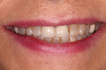 Fig 1. This patient had been treated with porcelain-fused-to-metal (PFM) crowns on teeth Nos. 8 and 9 more than 30 years ago. Now, just before her 60th birthday, she had significant wear and wanted a new smile that would last for the rest of her life.