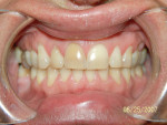 Figure 7  Note the very dark right central incisor, and severe wear due to nocturnal bruxism.
