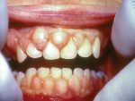 Gingival hyperplasia with increased red, edematous tissue