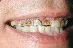 Figure 10  Preoperative condition shows severe destruction of the maxillary teeth.