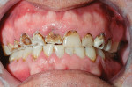 Figure 11  Preoperative condition shows severe destruction of the maxillary teeth.