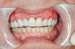 Figure 13  The provisionals immediately after treatment; the result of the soft tissue recontouring is evident.
