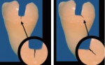 Figure 2A and Figure 2B Early-stage cracks may be asymptomatic but visible with scope and methylene blue dye (Note the mesio-buccal oblique crack line on asymptomatic upper first molar). (Figure 2A courtesy of Dr. David Clark.)
