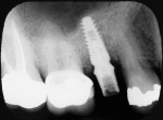 Fig 21. Radiograph of final abutment seated.