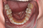 Fig 8. Post-treatment, lower dentition, occlusal view.