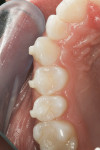 Figure 4  The preoperative condition displays only a mild rotation of tooth No. 13 and ample access to the contact from an occlusal approach.