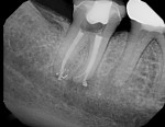 Postoperative image of tooth No. 31 following retreatment.