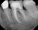 Intraoral periapical radiograph of previously treated tooth No. 19.
