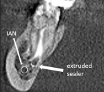 A postoperative radiograph showing extruded sealer potentially tracking the length of the mandibular canal. An immediate Postoperative CBCT scan was taken in order to ascertain the location of the sealer and its proximity to the inferior alveolar nerve. The sealer was positioned lingual to the nerve; the patient reported no symptoms at the followup appointment.