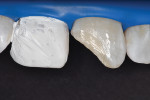 Tooth preparation to receive a Class IV resin composite restoration. Tooth No. 8 isolated with Teflon tape in order to protect it against accidental etching.