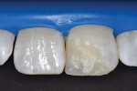 Dentinal mamelons built with microfilled resin composite.