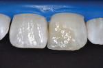 Application of white tint to replicate white spots present on adjacent teeth.