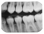 Teenager with beginning mesial and distal caries lesions of the second premolar.