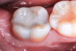 Class I restoration completed after SDF swabbing of tooth preparation 3 months prior.