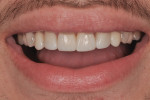 Integration between restoration and natural tooth structures resulting in a more harmonic smile.