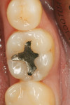 Figure 1  The patient desired to remove an unsightly amalgam restoration on tooth No. 19.