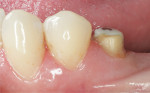 Figure 3  Conservative supragingival chamfer margins were prepared.