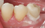 Figure 7  Buccal view of the fired IPS e.max CAD lithium-disilicate crown inserted using the transparent shade of SpeedCEM cement.