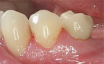 Figure 9  Buccal view of the definitively cemented IPS e.max lithium-disilicate crown restoration.