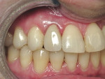 Figure 5  The case was completed by the prosthodontist with all-ceramic crowns.