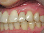 Figure 6  The case was completed by the prosthodontist with all-ceramic crowns.