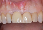 After nonsurgical debridement and systemic antibiotics, the patient returns for surgical therapy. Pre-existing gingival levels and esthetics, which have been stable for almost 8 years, are present.