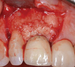 From both the palatal and facial aspects, the rhPDGF-BB enriched bone allograft is placed into the defect, intentionally overbuilding about 20% to compensate for consolidation after surgery.
