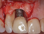 Flap access is followed by mechanical and chemical treatment of the contaminated implant surface and mesial root surface of tooth No. 7.