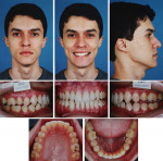 Fig 1. Pretreatment facial and intraoral photographs.