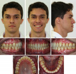 Fig 17. Post-treatment facial and intraoral photographs.