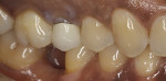 Porcelain-fused-to-metal crown on tooth No. 4 with supragingival margin and exposed dark stump.