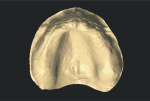 Fig 4. Screen shot of the intraoral scan with the color removed.