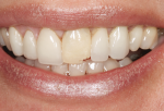 Fig 2. Lack of interdental papillae display was evident in the patient's smile.