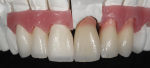 Fig 8. The build-up and layering of ceramics on the metal-ceramic coping, tooth, and gingiva-shaded veneers could be constructed simultaneously.