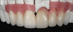 Fig 9. The final layering and build-up of the veneers and crown restoration.
