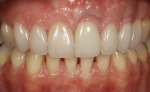 Fig 16. The intraoral esthetic integration of the tooth-colored veneers, metal-ceramic crown with gingiva-shaded porcelain, and the pink veneers is evident.