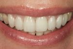 Fig 17. The patient's smile, post-treatment.